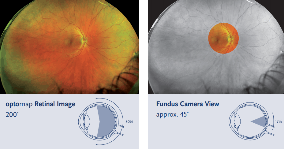 Optos Scanner